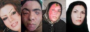 Acid attack on women in Isfahan